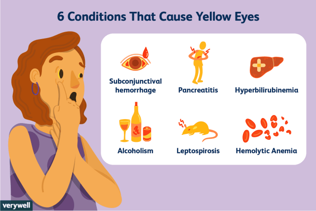 What Causes Discoloration In The Eyes Creativmakeup Co