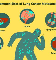 sites of lung cancer metastases [ 1500 x 1000 Pixel ]
