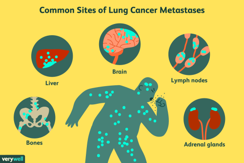 small resolution of sites of lung cancer metastases