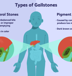 an overview of gallstones [ 6000 x 4000 Pixel ]