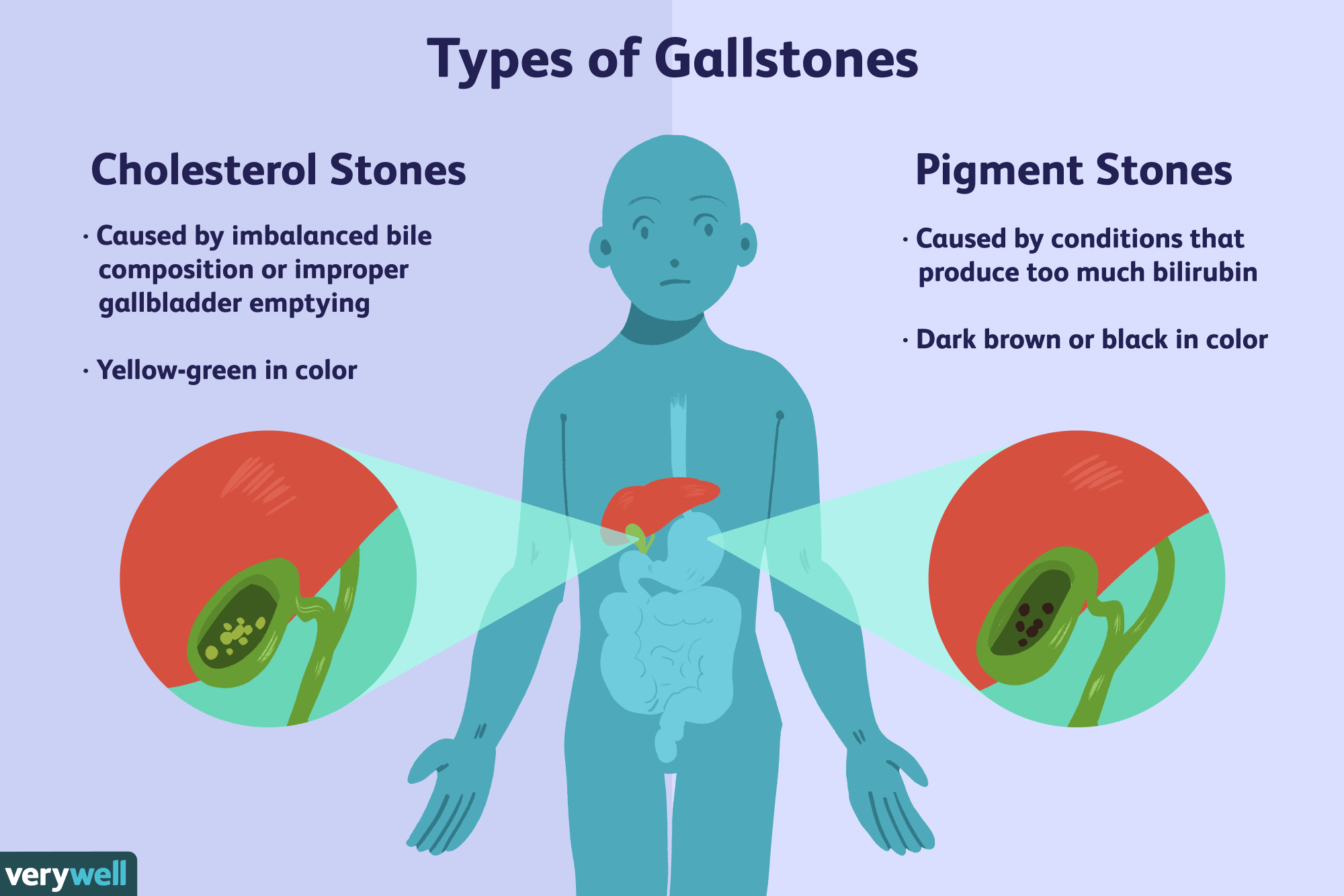 hight resolution of an overview of gallstones