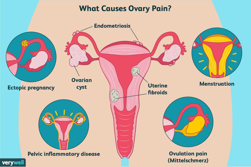 medium resolution of causes of ovary pain