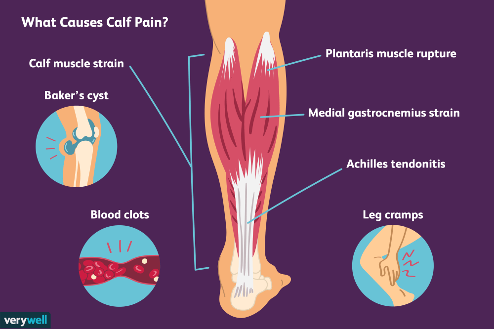 medium resolution of causes of calf pain