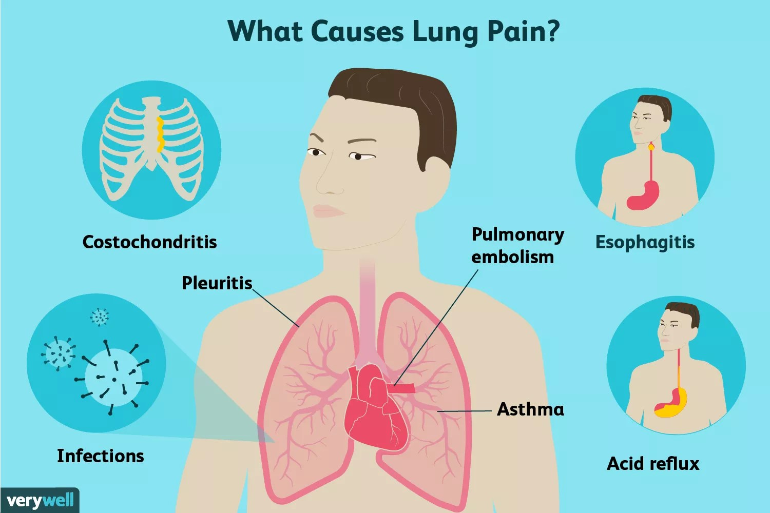 causes of lung pain