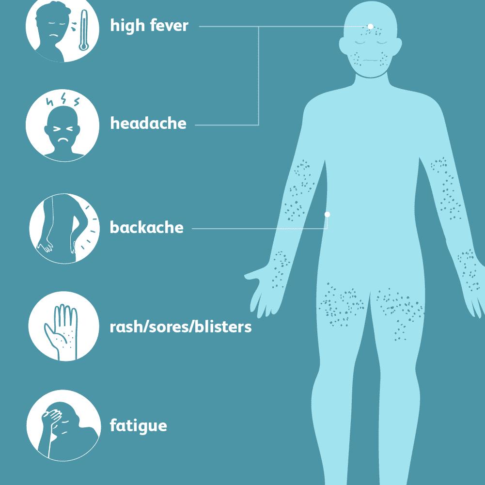 hight resolution of smallpox symptoms