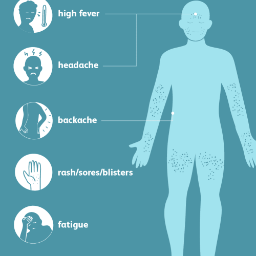 small resolution of smallpox symptoms