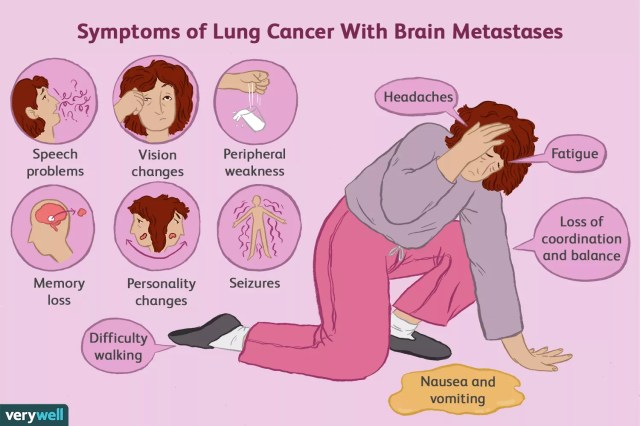 symptoms of lung cancer with brain metastases