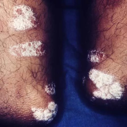 Photos of the Chronic Skin Condition