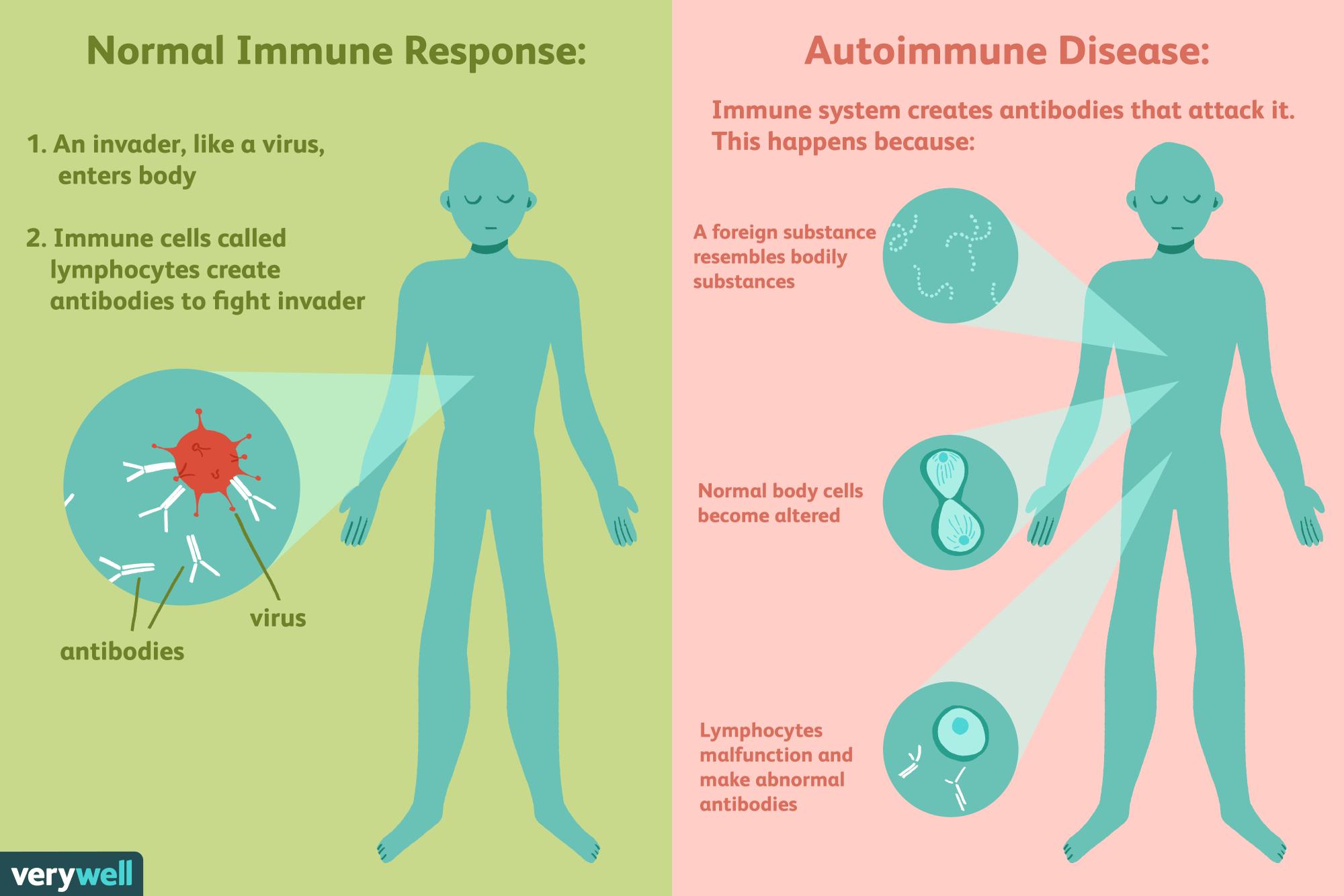 hight resolution of autoimmune disease