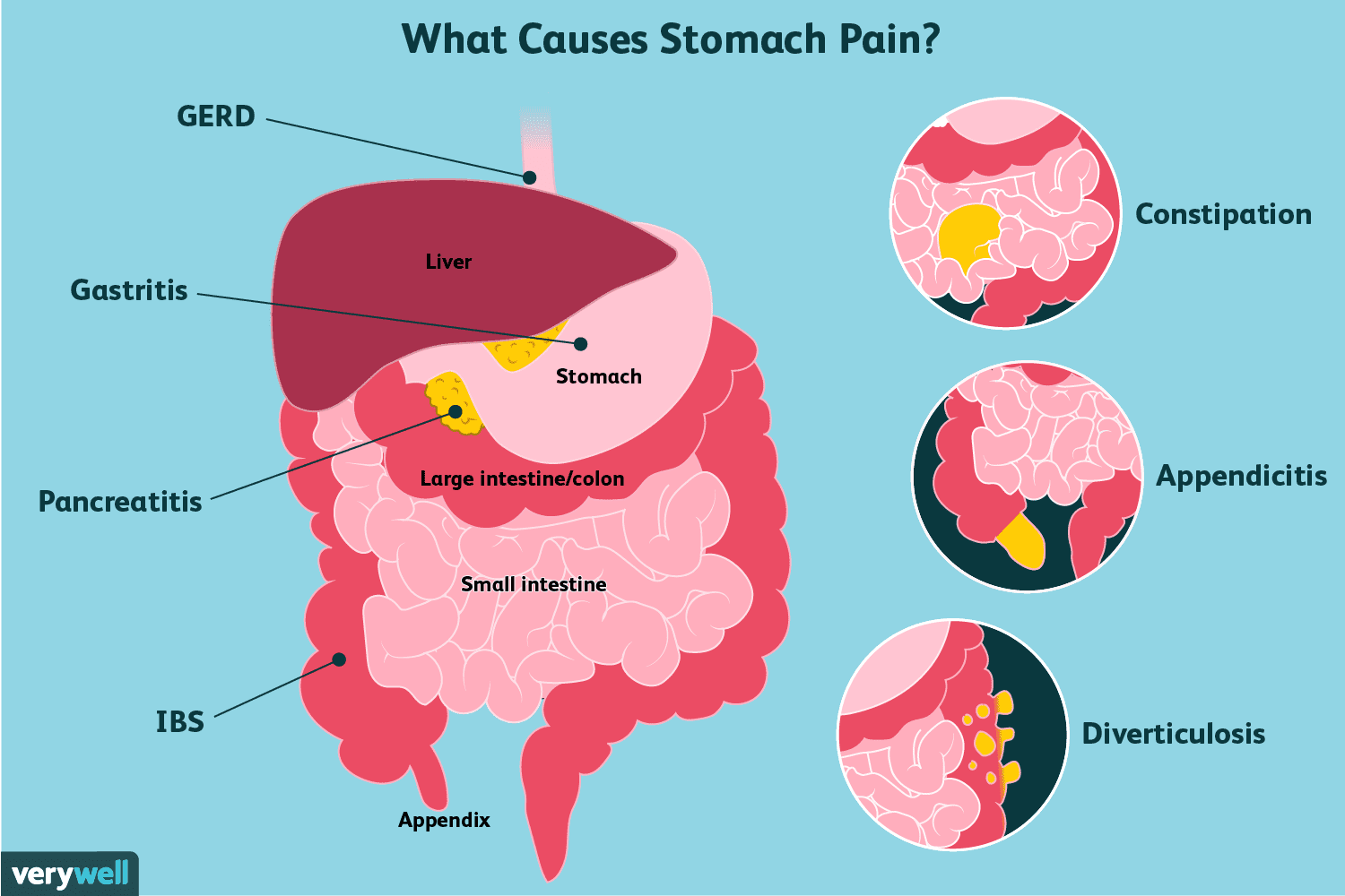 hight resolution of causes of stomach pain