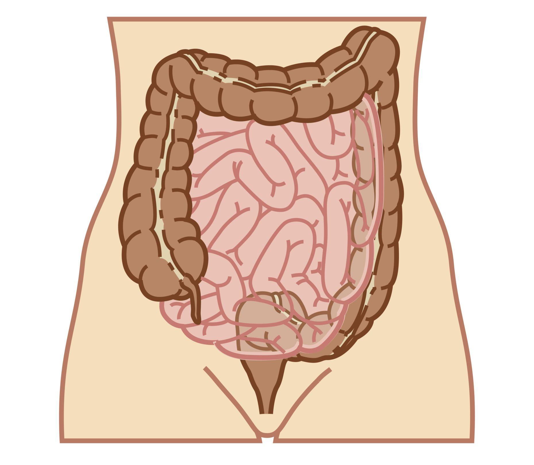 hight resolution of bowel perforation