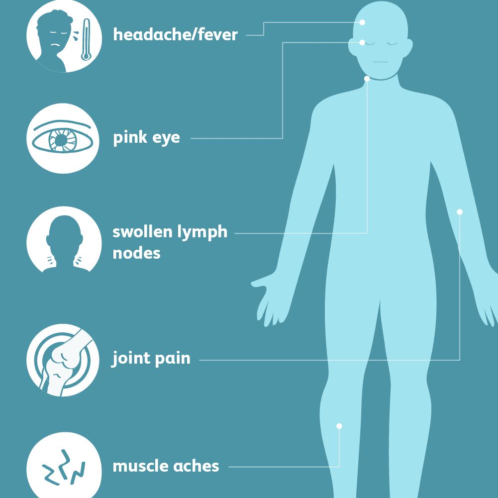 Zika Virus: Signs, Symptoms, and Complications