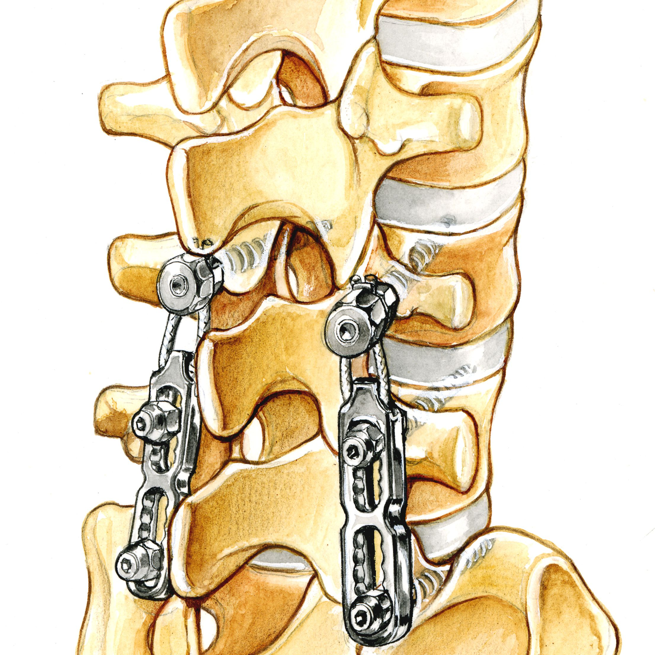 best chair after neck surgery siesta replacement parts should you have for cervical radiculopathy spinal hardware