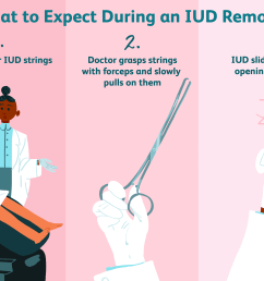 what to expect during iud removal [ 6000 x 4000 Pixel ]