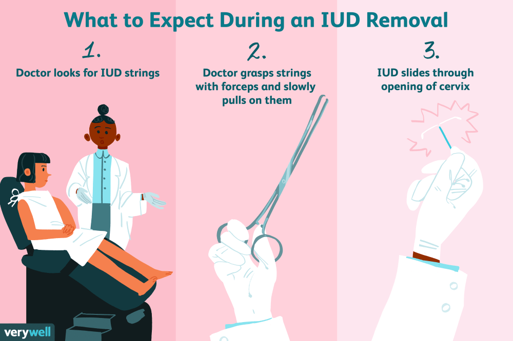 medium resolution of what to expect during iud removal