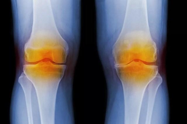 X-ray showing arthritic knees