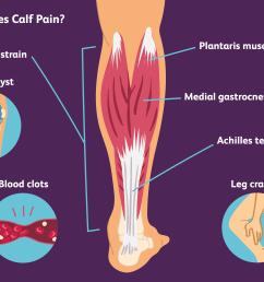 causes of calf pain [ 6250 x 4167 Pixel ]