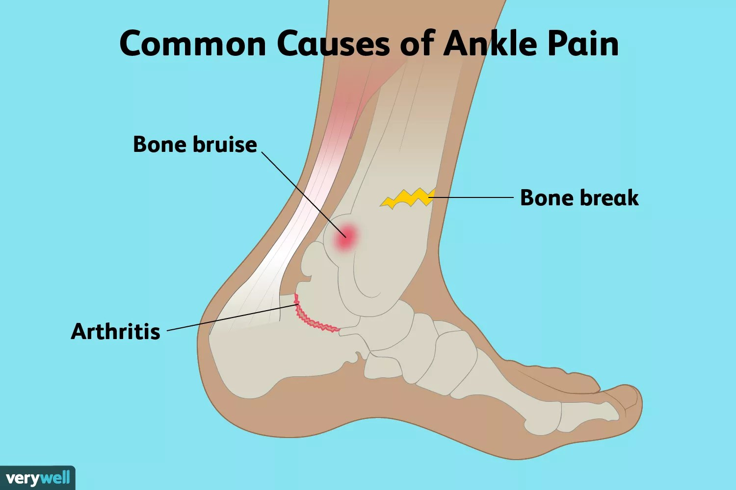 Common causes of ankle pain