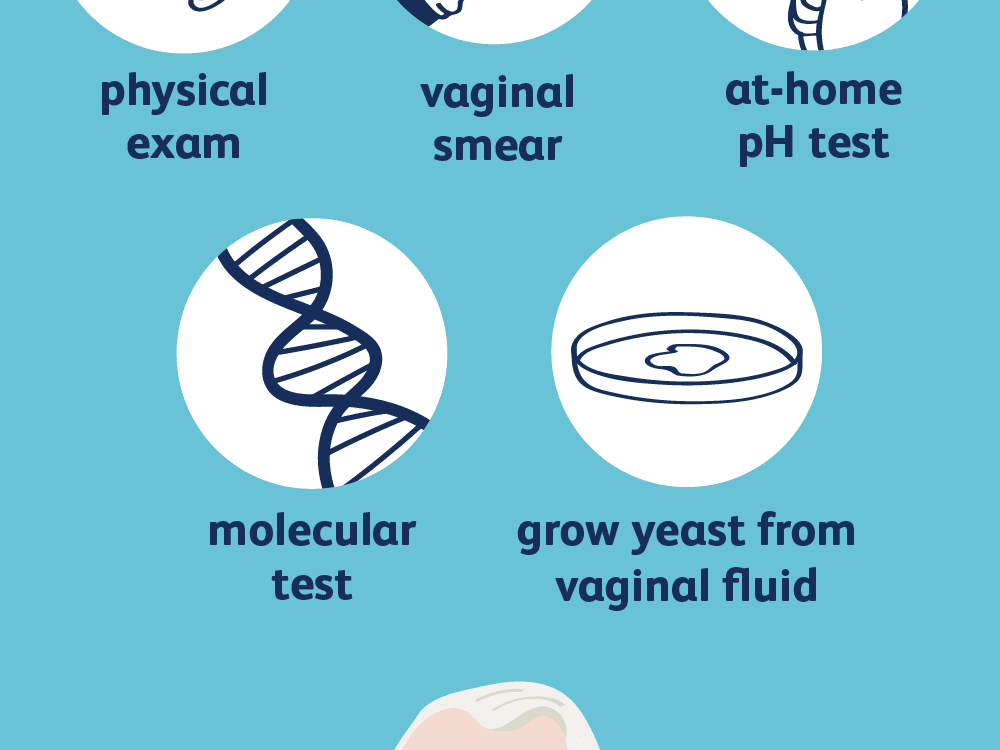 How Yeast Infections Are Diagnosed