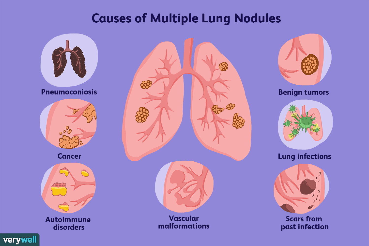 Do Non Cancerous Nodules In The Lung Grow Bigger - CancerWalls