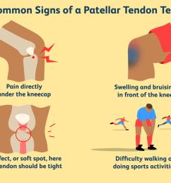 overview of patellar tendon tear [ 1500 x 1000 Pixel ]