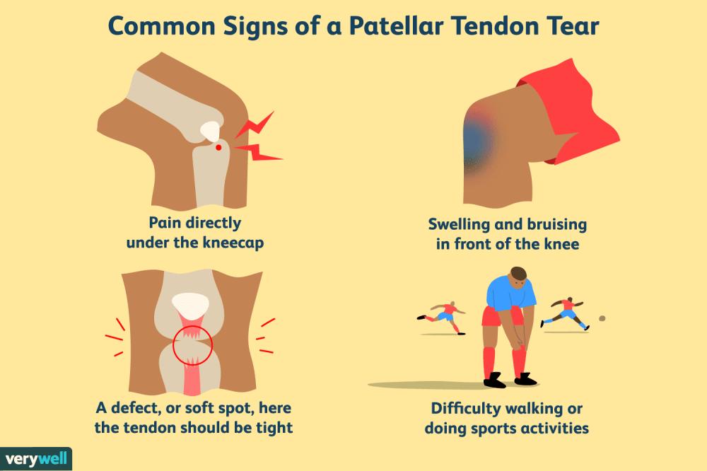 medium resolution of overview of patellar tendon tear