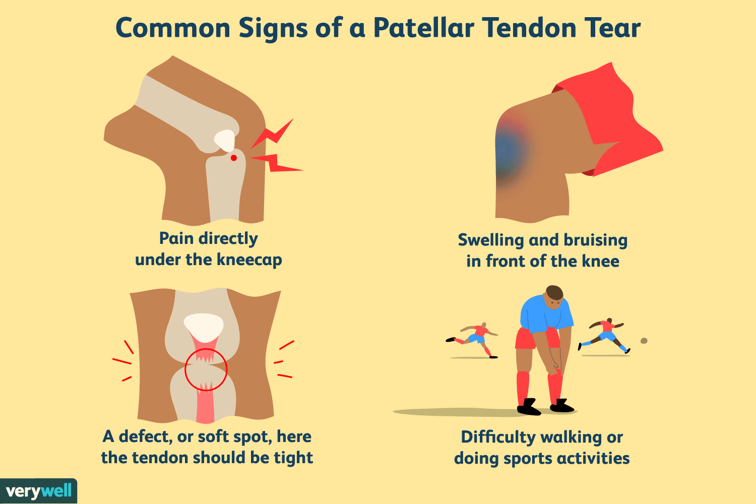 hight resolution of overview of patellar tendon tear