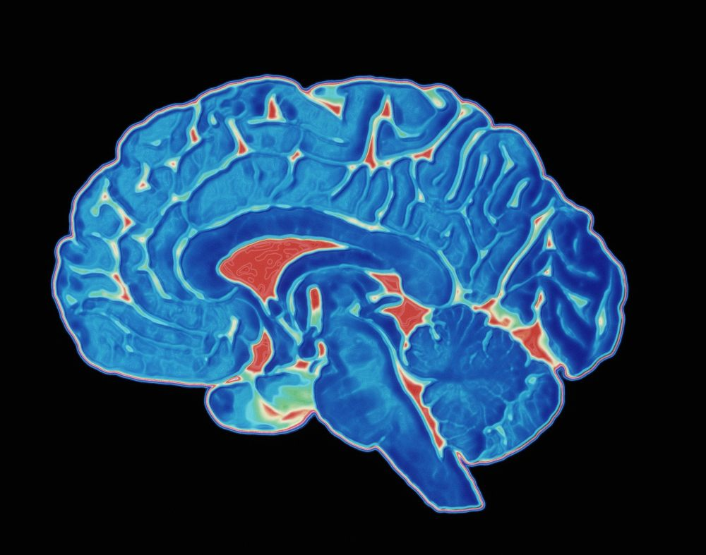 medium resolution of coloured ct scan of a healthy brain side view