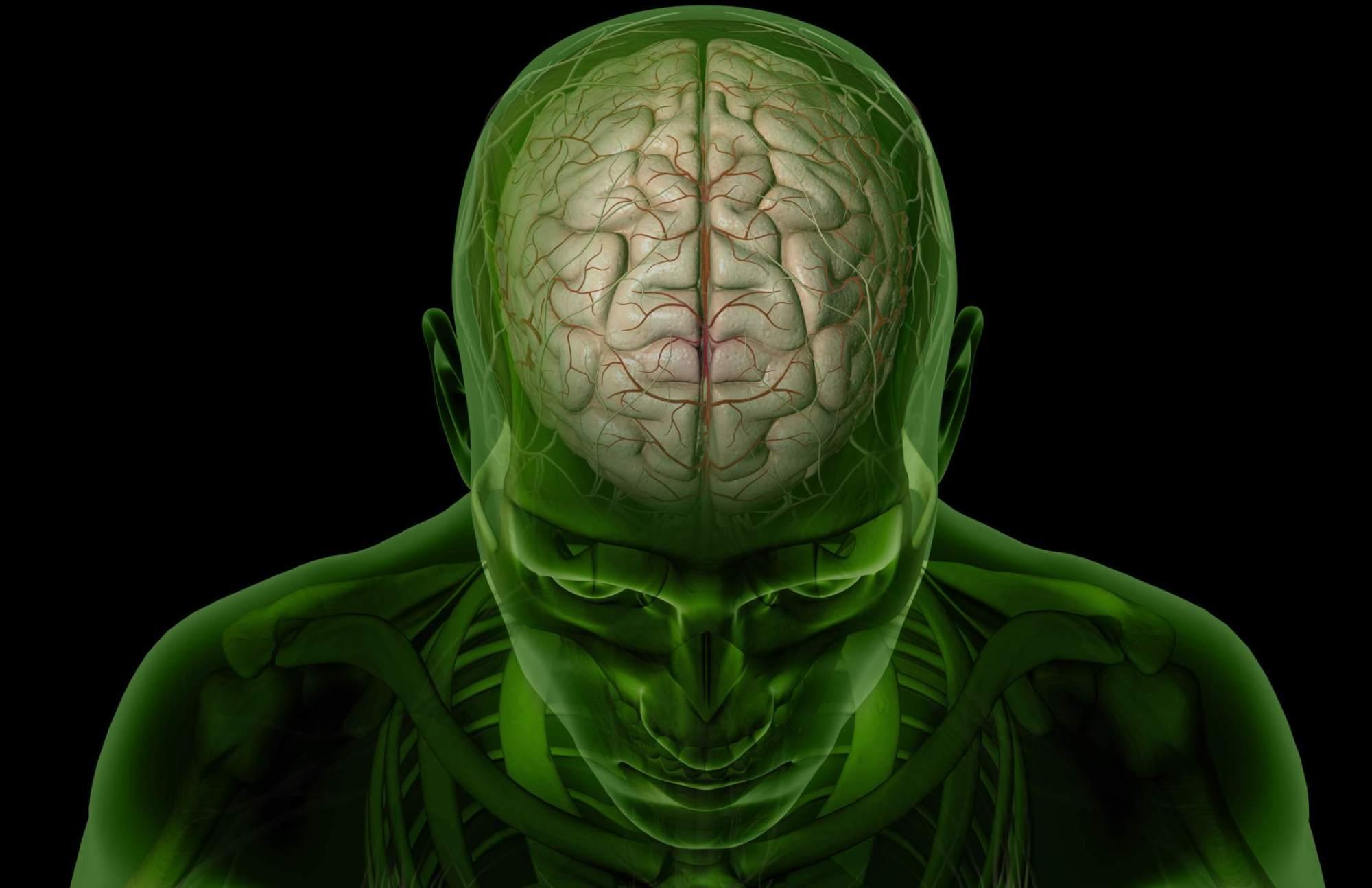hight resolution of brain arteries