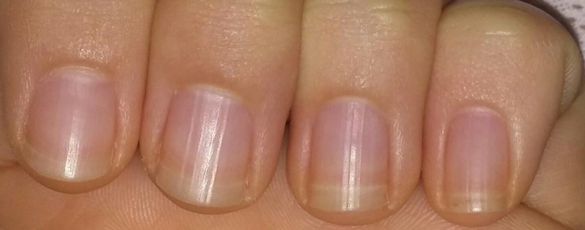 Olio di ricino per unghie