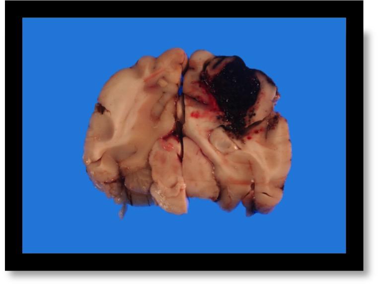 Hyperosmolar therapy in spontaneous intracerebral hemorrhage