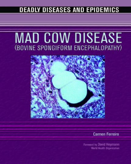 Mad Cow Disease Bovine Spongiform Encephalopathy Deadly Diseases And Epidemics
