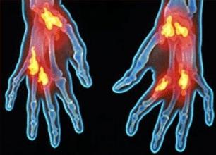Desarrollan Una Nueva Técnica Para Detectar Enfermedades Mitocondriale