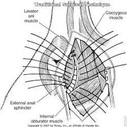 Ernia perineale: castrazione caudale o pre-scrotale