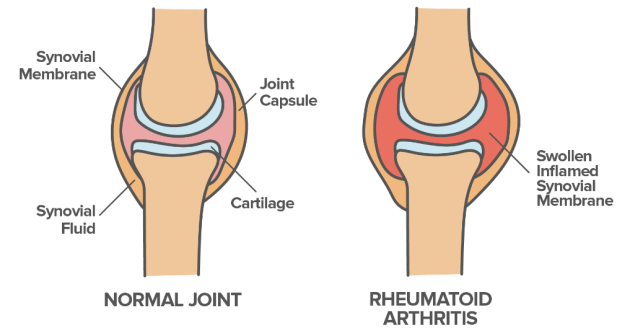 How Normal and Rheumatoid Arthritis Joint Look Like