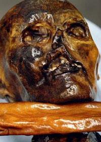 Cranio di Otzi