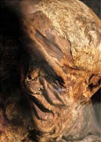 Cranio dell'Uomo di Lindow