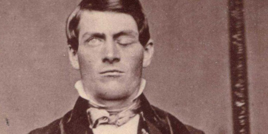 Il terribile incidente di Phineas P. Gage