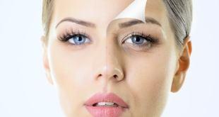 Mejorar aspecto facial