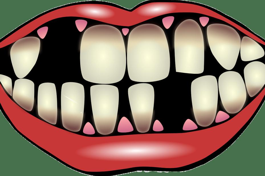 Boala parodontală