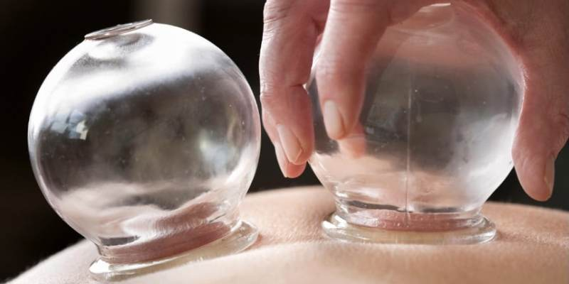TCM practitioner performing cupping