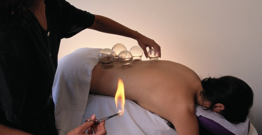Patient during a fire cupping treatment