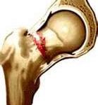 Males da Osteoporose