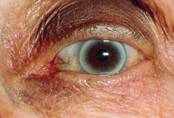 las enfermedades se ven en los ojos