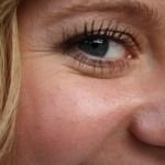 Les injections préventives de Botox