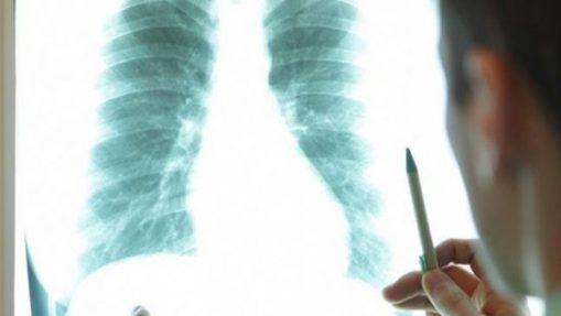 Tầm soát ung thư định kỳ giúp phát hiện bệnh ung thư phổi nguy hiểm.