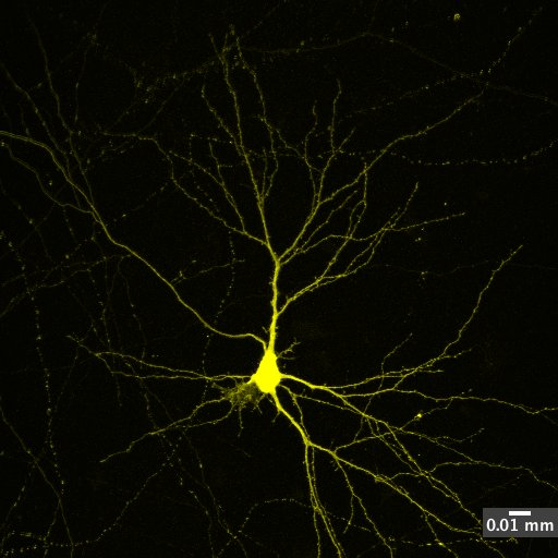 A picture of a neuron from a rat brain, which has been grown in a dish