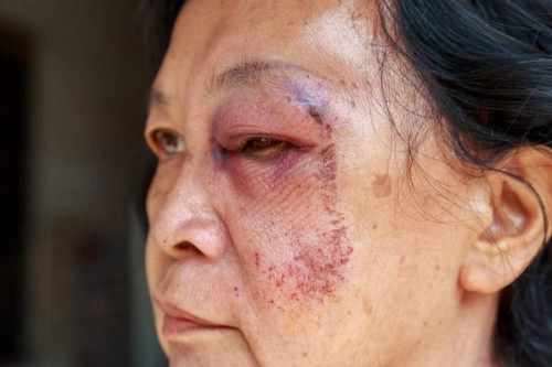 Fort Myers Elder Abuse Lawyers