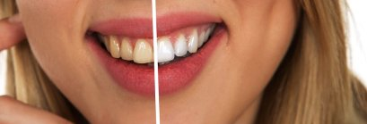 teeth whitening