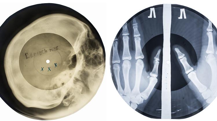 X-ray Records
